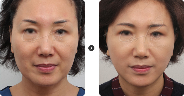 Lesarts plastic surgery - No 1 plastic surgery in korea